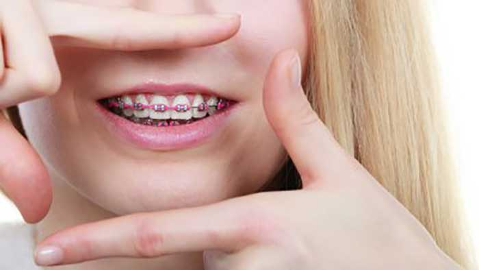 One Phase Versus Two Phase Orthodontic Treatment
